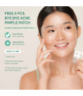 Seoul White Korea BYE BYE ACNE Pimple-fighting whip soap FREE 6pc Pimple Patch